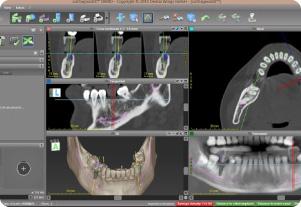 データに基づく緻密な手術のプランニング