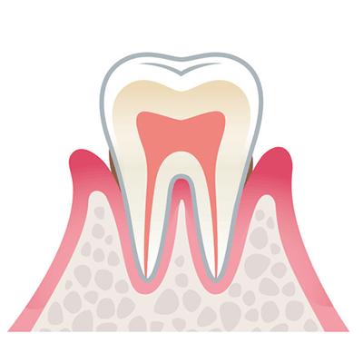 歯周病の進行 軽度