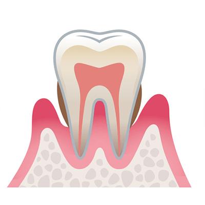 歯周病の進行 中等度