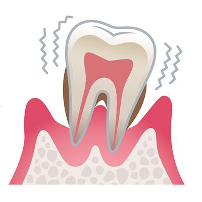 歯周病の進行 重度